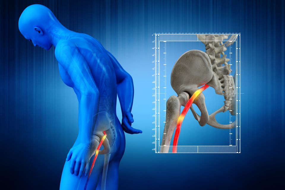How to relieve sciatic nerve pain